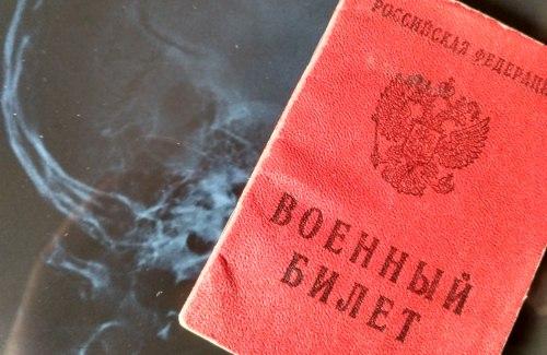 Что значит статья 25б в военном билете